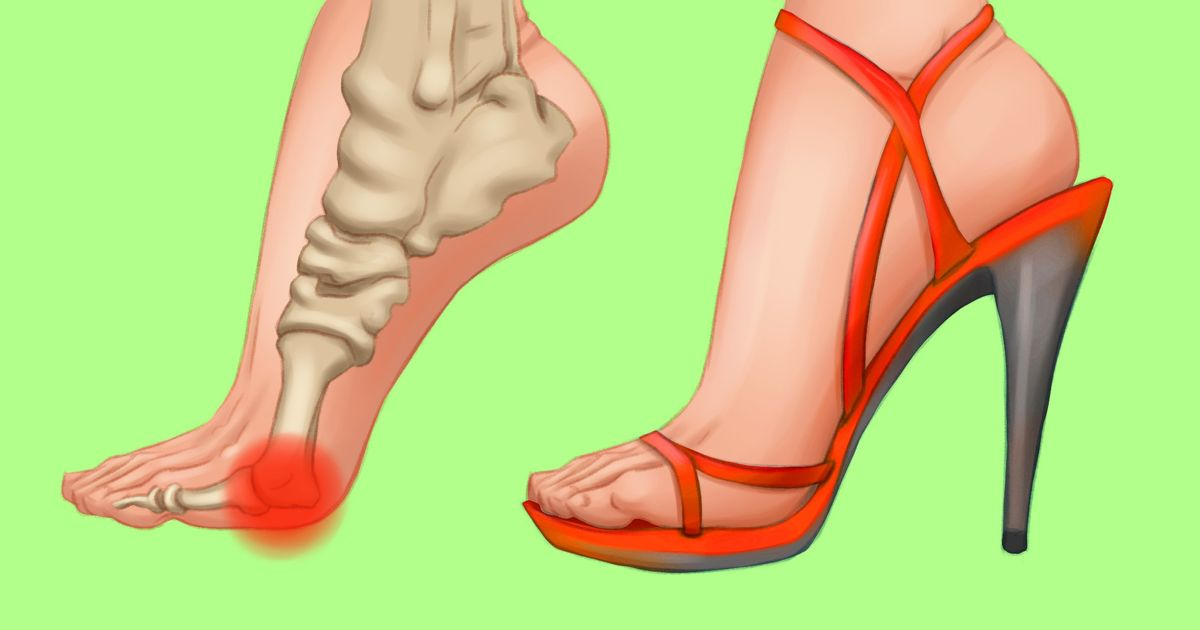 How to Wear High Heels Comfortably