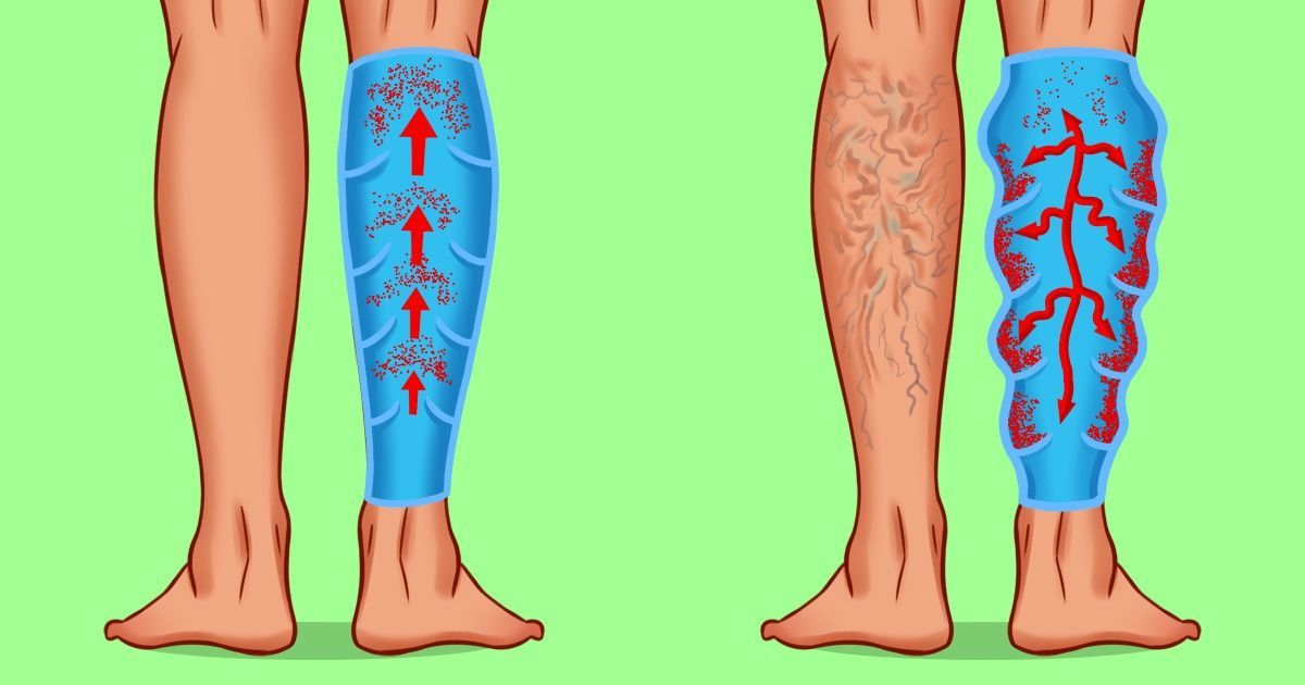 How to Get Rid of Varicose Veins: 8 Ways